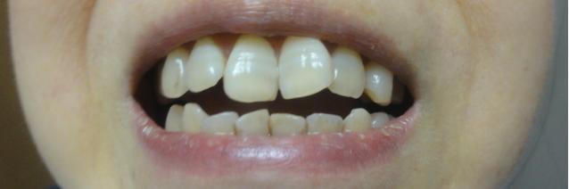 ホームホワイトニング W光触媒歯みがきジェル