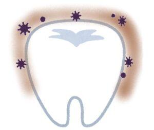 歯医者さん推薦の歯みがきジェル・トレルデフレッシュ