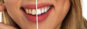 薬用歯みがき オーラパールプラス